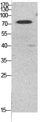 Fig.1. Western Blot analysis of HeLa cells using Acetyl-Ub (K48) Polyclonal Antibody. Secondary Antibody was diluted at 1:20000.