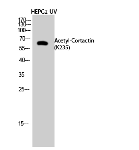 Fig.2. Western Blot analysis of HEPG2-UV cells using Acetyl-Cortactin (K235) Polyclonal Antibody diluted at 1:500. Secondary Antibody  was diluted at 1:20000.