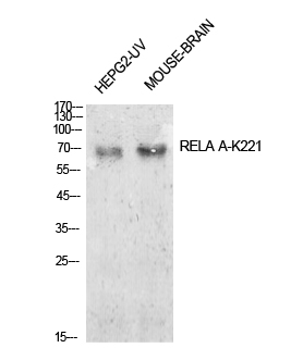 Fig.1. Western Blot analysis of HepG2-UV, mouse brain cells using Acetyl-NFκB-p65 (K221) Polyclonal Antibody. Antibody was diluted at 1:1000. Secondary Antibody  was diluted at 1:20000.