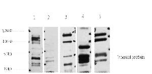 Fig. Western blot analysis of 1) Hela, 2) Jurkat, 3) HepG2, 4) Mouse Liver tissue, 5) Rat Brain tissue, diluted at 1:2000. Secondary antibody was diluted at 1:20000.