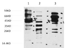 Fig. Western blot analysis of 1) Hela, 2) 3T3, 3) Rat Brain, diluted at 1:2000. Secondary antibody was diluted at 1:20000.