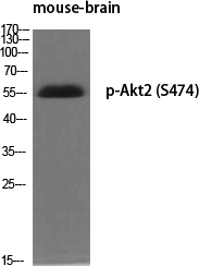 Fig.1. Western Blot analysis of various cells using Phospho-Akt2 (S474) Polyclonal Antibody diluted at 1:500