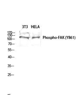 Fig.2. Western blot analysis of 3T3 HELA lysis using Phospho-FAK (Y861) antibody. Antibody was diluted at 1:1000.