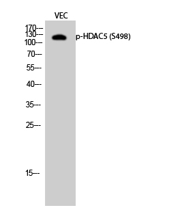 Fig.2. Western Blot analysis of VEC cells using Phospho-HDAC5 (S498) Polyclonal Antibody diluted at 1:500.