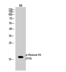 Fig.2. Western Blot analysis of KB cells using Phospho-Histone H3 (S10) Polyclonal Antibody.