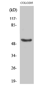 Fig. Western Blot analysis of various cells using Phospho-p53 (S37) Polyclonal Antibody diluted at 1:1000.