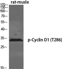 Fig.1. Western Blot analysis of various cells using Phospho-Cyclin D1  (T286) Polyclonal Antibody diluted at 1:500.