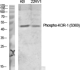 Fig.1. Western Blot analysis of various cells using Phospho-KOR-1  (S369)  Polyclonal Antibody diluted at 1:1000.