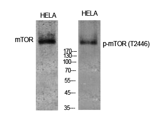 Fig. Western Blot analysis of various cells using Phospho-mTOR (T2446) Polyclonal Antibody diluted at 1:1000.
