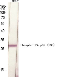 Fig.1. Western Blot analysis of various cells using Phospho-RPA p32 (S33) Polyclonal Antibody diluted at 1:500.