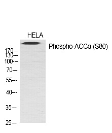 Fig.1. Western Blot analysis of various cells using Phospho-ACCα (S80) Polyclonal Antibody diluted at 1:1000.