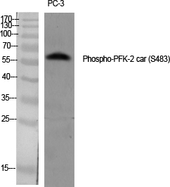 Fig.1. Western Blot analysis of various cells using Phospho-PFK-2 car (S483) Polyclonal Antibody diluted at 1:1000.