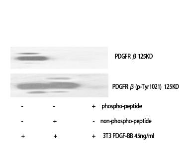 Fig. Western Blot analysis of various cells using Phospho-PDGFR-β (Y1021) Polyclonal Antibody.