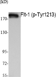 Fig. Western Blot analysis of extracts from K562 cells, using Phospho-Flt-1 (Y1213) Polyclonal Antibody.
