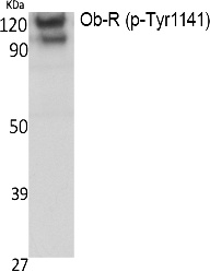 Fig. Western Blot analysis of extracts from K562 cells, using Phospho-Ob-R (Y1141) Polyclonal Antibody.