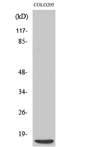 Fig. Western Blot analysis of various cells using 4E-BP1 Polyclonal Antibody diluted at 1:500.
