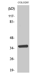 Fig. Western Blot analysis of various cells using AASD-PPT Polyclonal Antibody.