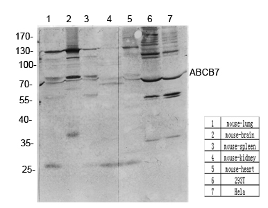 Fig.2. Western Blot analysis of various cells using antibody diluted at 1:1000. Secondary antibody was diluted at 1:20000.