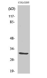 Fig. Western Blot analysis of various cells using ABHD11 Polyclonal Antibody.