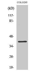 Fig. Western Blot analysis of various cells using ABHD6 Polyclonal Antibody.