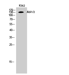 Fig.2. Western Blot analysis of K562 cells using Abl1/2 Polyclonal Antibody.