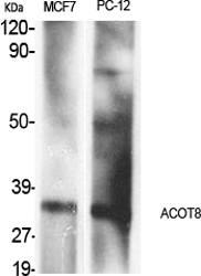 Fig.1. Western Blot analysis of various cells using ACOT8 Polyclonal Antibody.