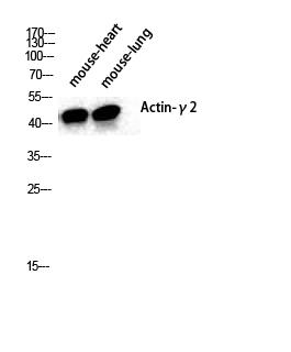 Fig.1. Western Blot analysis of various cells using Actin α3 Polyclonal Antibody diluted at 1:2000.