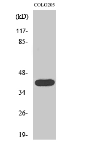 Fig.2. Western Blot analysis of COLO205 cells using Actin α3 Polyclonal Antibody diluted at 1:2000.