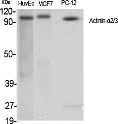 Fig.1. Western Blot analysis of various cells using Actinin-α2/3 Polyclonal Antibody.