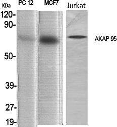 Fig.1. Western Blot analysis of various cells using AKAP 95 Polyclonal Antibody diluted at 1:1000.