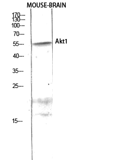Fig.3. Western Blot analysis of HEPG2 using Akt1 Polyclonal Antibody diluted at 1:1000.