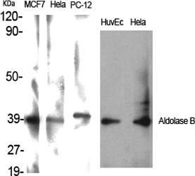 Fig.1. Western Blot analysis of various cells using Aldolase B Polyclonal Antibody.