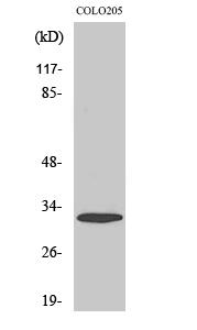 Fig. Western Blot analysis of various cells using APHC Polyclonal Antibody.