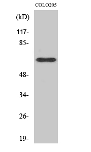 Fig.2. Western Blot analysis of COLO205 cells using C9 Polyclonal Antibody.