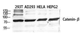 Fig.1. Western Blot analysis of various cells using Catenin-β Polyclonal Antibody diluted at 1:2000.