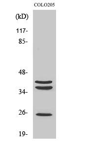 Fig. Western Blot analysis of various cells using Cathepsin B Polyclonal Antibody.