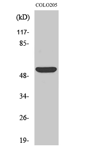 Fig.2. Western Blot analysis of COLO205 cells using CD4 Polyclonal Antibody diluted at 1:500.
