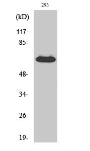 Fig. Western Blot analysis of various cells using CD5 Polyclonal Antibody.