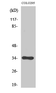 Fig. Western Blot analysis of various cells using Cdc34 Polyclonal Antibody diluted at 1:1000.