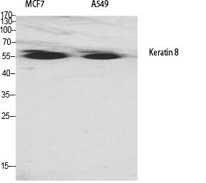 Fig.1. Western Blot analysis of various cells using Cytokeratin 8 Polyclonal Antibody diluted at 1:2000.