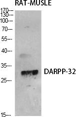 Fig.1. Western Blot analysis of various cells using DARPP-32 Polyclonal Antibody diluted at 1:500.