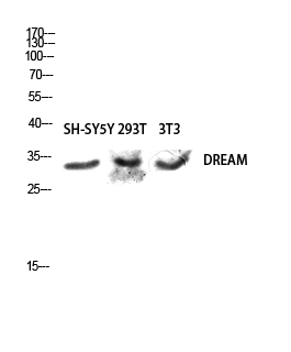 Fig.2. Western blot analysis of SH-SY5Y 293T 3T3 lysis using DREAM antibody. Antibody was diluted at 1:500.