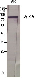 Fig.1. Western Blot analysis of various cells using Dyrk1A Polyclonal Antibody diluted at 1:500.