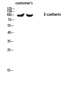 Fig.3. Western blot analysis of customer's using E-cadherin Polyclonal Antibody diluted at 1:1000.