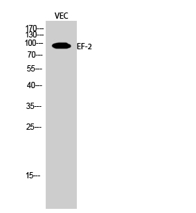 Fig.2. Western Blot analysis of VEC cells using EF-2 Polyclonal Antibody diluted at 1:2000.