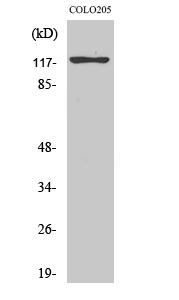Fig.2. Western Blot analysis of COLO205 cells using Eg5 Polyclonal Antibody.