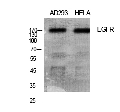 Fig.1. Western Blot analysis of various cells using EGFR Polyclonal Antibody diluted at 1:1000.