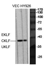 Fig.1. Western Blot analysis of various cells using EKLF/CKLF/UKLF Polyclonal Antibody diluted at 1:500.