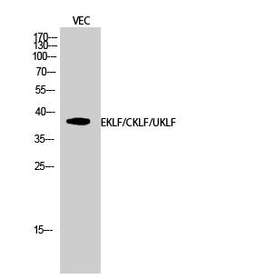 Fig.2. Western Blot analysis of VEC cells using EKLF/CKLF/UKLF Polyclonal Antibody diluted at 1:500.