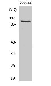 Fig. Western Blot analysis of various cells using EphA1 Polyclonal Antibody.